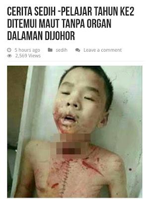 Polis nafi kes culik, ambil organ kanak-kanak