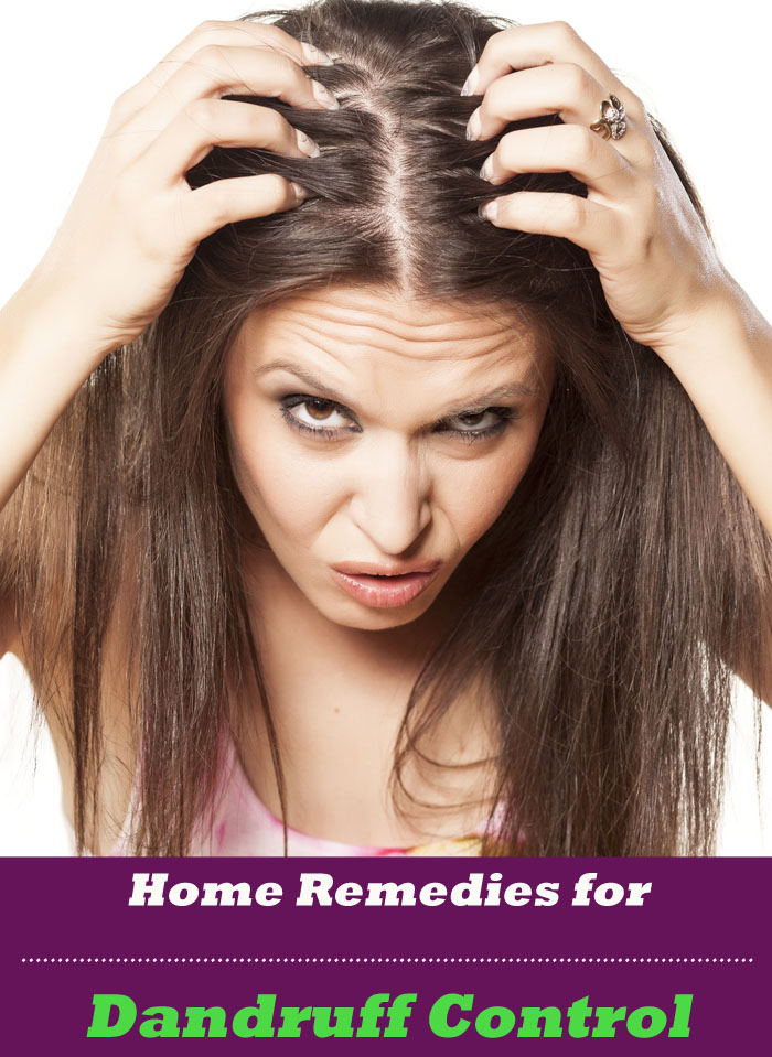 Home Remedies for Dandruff Control
