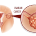 Symptoms Of Ovarian Disease That You Always Ignored