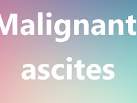 Malignant Ascites Life Expectancy