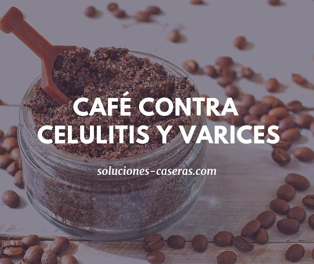 remedio para eliminar varices y celulitis