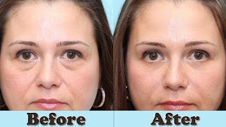 puffy eyes,how to get rid of eye bags,how to get rid of swollen eyes,how to get rid of puffy eyes,how to get rid of bags under eyes,how to get rid of dark circles,how to get rid of puffiness under eyes,how to,how to reduce puffy eyes,how to cure puffy eyes,how to get rid of puffy eyelids,get rid of puffy eyes,how to get rid of puffiness on eyelids
