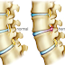 Slipped Disk Causes And Treatment