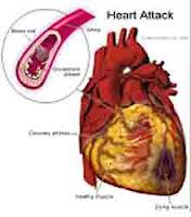 "<Imgsrc =""Dibujo-corazón-con-infarto.jpg"" width = ""220"" height ""250"" border = ""0"" alt = ""Infarto cardíaco"">"
