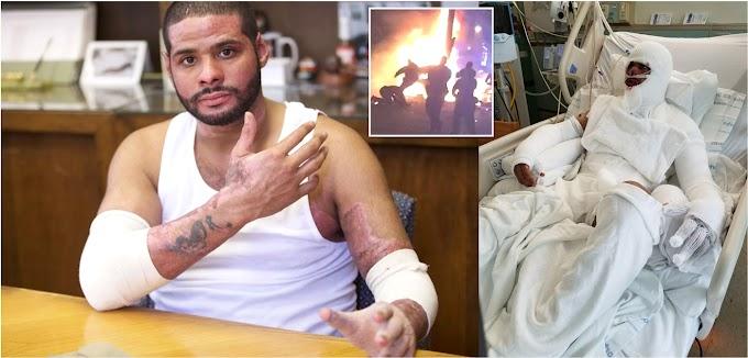 Dominicano que se prendió en fuego en Nueva Jersey radica demanda por 25 millones de dólares
