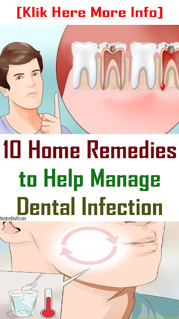 Tooth Abscess: 10 Home Remedies to Help Manage the Infection #Abscessed #Tooth #Health #Remedies