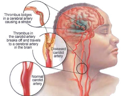 http://vaidyahealthcare.com/stroke-rehablitation-and-treatments.html