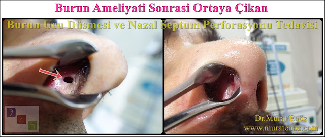 Nazal septum perforasyonu - Septum perforasyonu ameliyatı olanlar - Septum perforasyonu olanlar - Septum perforasyonu ameliyatı yapan doktorlar - Burunda delik oluşumu - Burun duvarında delik - Burun kıkırdak delinmesi tedavisi - Septum perforasyonu ameliyatı olanlar - Septum perforasyonu olanlar - Septal perforasyon tamiri - Septal buton uygulaması - Nazal septum perforasyonu tedavisi - Nazal septum perforasyonu nedenleri - Nazal septum perforasyonu belirtileri - Septum perforasyonun cerrahi onarımı - Burun delinmesinin nedenleri - Nazal septum perforasyonu tanısı - Erkek burun estetiği - Burun estetiği ameliyatı - Definition of Nasal Septal Perforation - Causes of Perforated Nasal Septum - Symptoms of Nasal Septal Perforation - Diagnosis of Nasal Septal Perforation - Surgical Treatment For Nasal Septal Perforation - Nasal Septal Perforation Repair - Surgical Repair of Nasal Septal Perforation - Burun Ucu Düşmesi