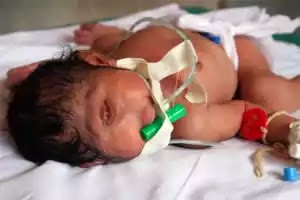 Baby born with one eye, no nose and no mouth in India.... see picture!!!!