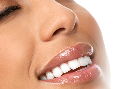 Izbjeljivanje zubi laserom