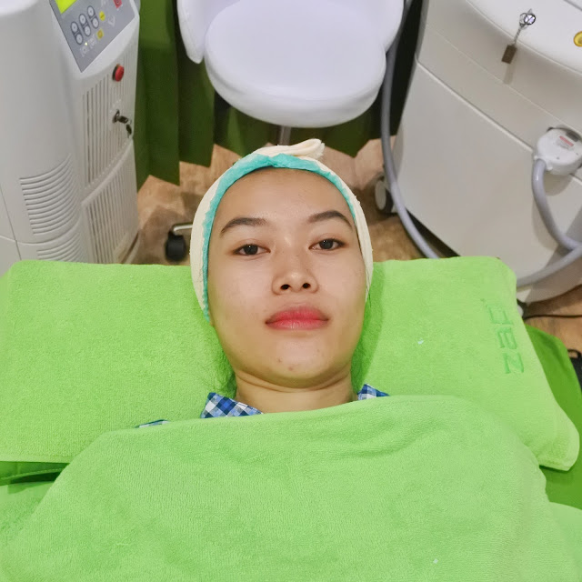 New ZAP Photo Facial