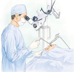 Biaya Operasi Kanker Tenggorokan