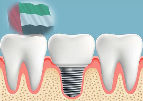 زراعة الاسنان في الامارات