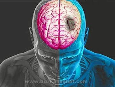 Cara Menyembuhkan Penyakit Stroke Dengan Cepat