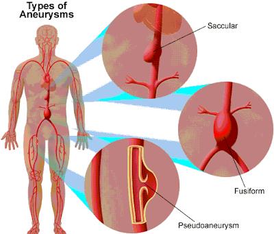 abdominal-aortic-aneurysm-definition