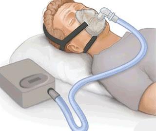 متلازمة انقطاع النفس اثناء النوم وعلاقتها بالسمنة وضغط الدم واستخدام جهاز باي باب BIPAP طبيب نت