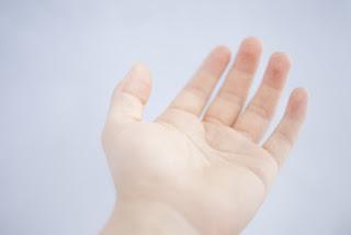 手根管症候群の人の手