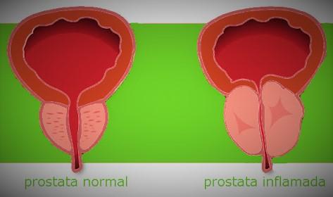 qué tipo de magnesio para la prostatitis crónica