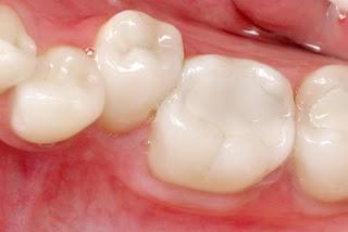 Trám răng mất thời gian bao lâu ?