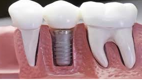 Dental Implant Information That Must Know