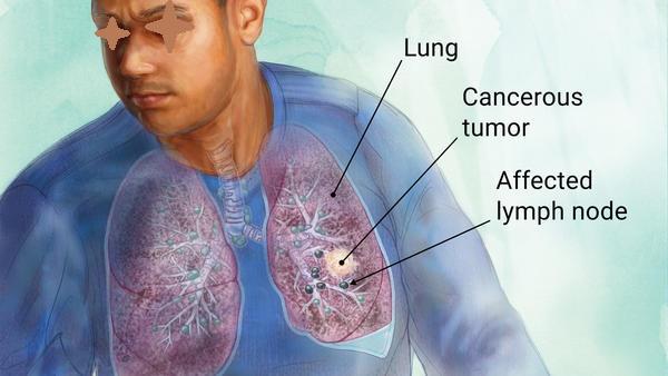 Gejala Dan Tahapan Kanker Paru - Pasien Sehat