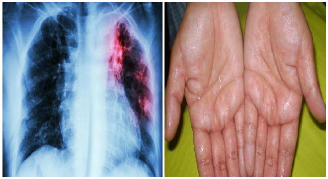 Ciri Ciri Penyakit Kanker Paru Paru Basah - Ini Cirinya