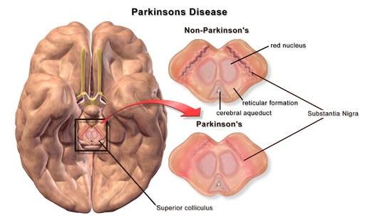 Asuhan Keperawatan Parkinson
