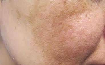 Elimine as manchas escuras e sardas do rosto