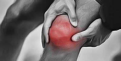 Remèdes naturels pour soulager la douleur au genou