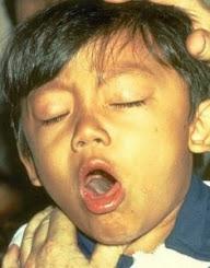 Pengobatan Batuk Kronis Pada Anak