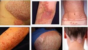 resep obat gatal kulit paling ampuh