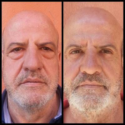 Operación de bolsas de los ojos y corrección del párpado caído - Blefaroplastia