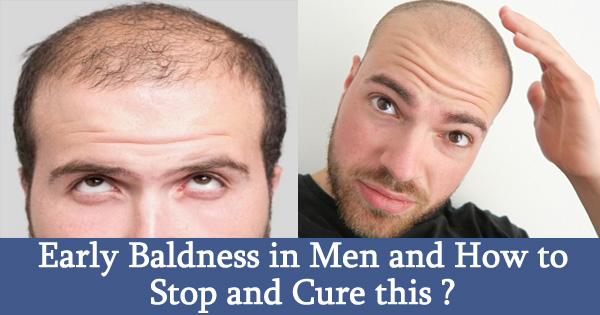 Early Baldness in Men and How to Stop and Cure this