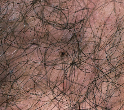 Pubic louse infestation; Phthirus pubis and nits attached to pubic hairs.