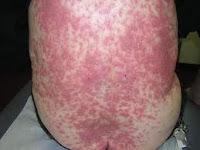 Cara Mengobati Gatal Alergi Pada Dada Dan Perut Dengan Obat Alami Ampuh