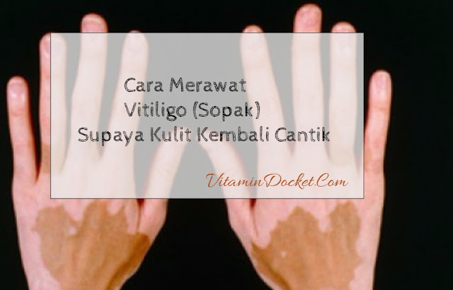 cara merawat vitiligo