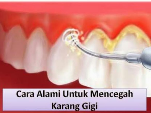 5 Cara Mencegah Karang Pada Gigi Terbaru Hari Ini 2018