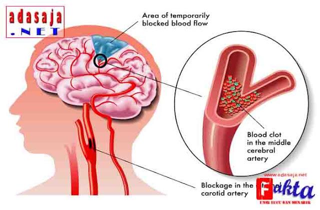 cara paling benar dalam pertolongan pertama para penderita serangan stroke
