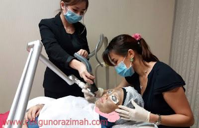 rawatan laser pada wajah, rawatan carbon laser, kelebihan rawatan carbon laser