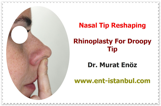 Patient Selection for Tipplasty - Current Concepts in Nasal Tip Plasty - How to Create Natural Nasal Tip? - Creating A Natural-Appearing Nasal Tip Contour