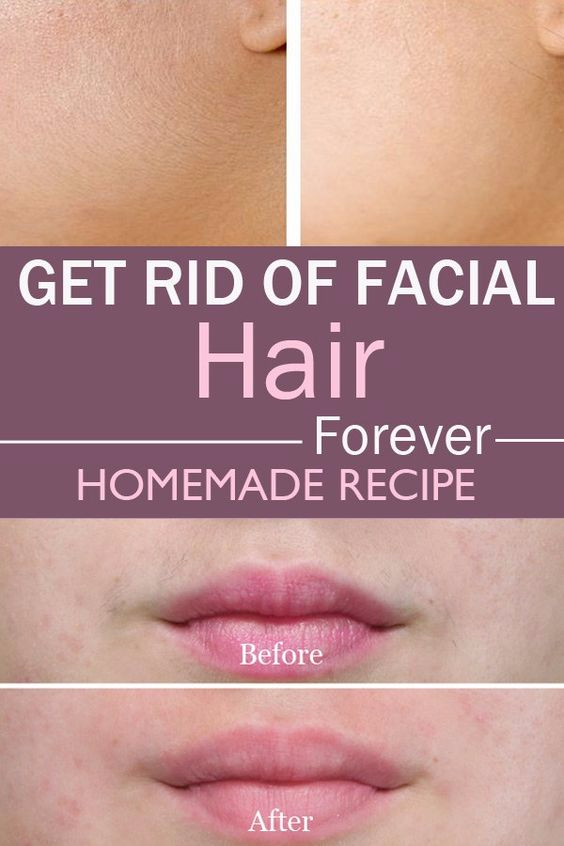 Get Rid of Facial Hair Forever