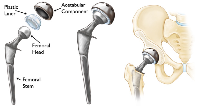 What Is Hip Replacement Surgery?