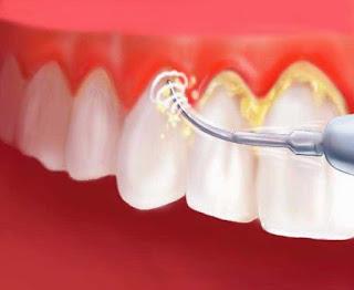 Cara menghilangkan plak gigi