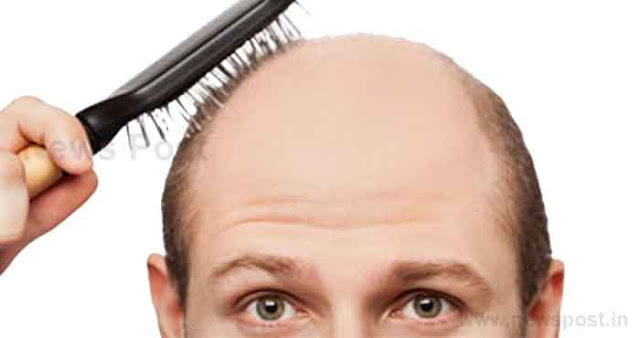 झड़ते, गिरते और सफेद बालों की समस्या से छुटकारा पाने के लिए घरेलू नुस्खें