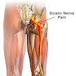 Marlton Acupuncture Sciatica Therapy