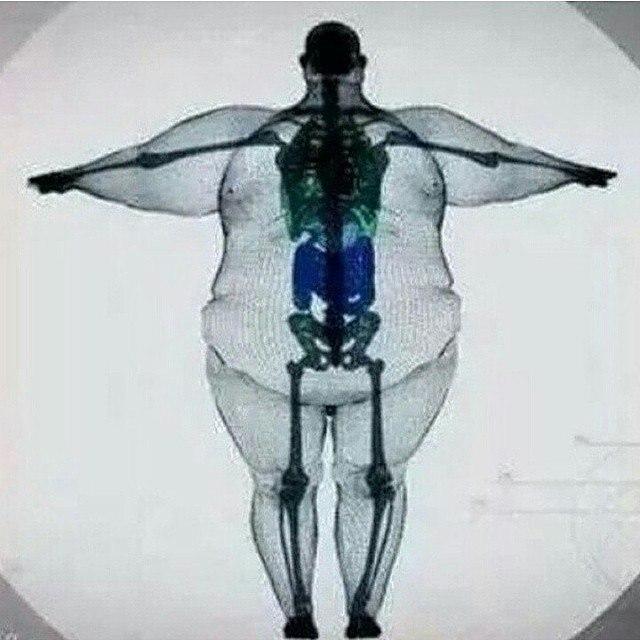 Позвоночник и лишний вес.
