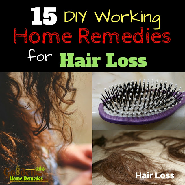 Home Remedies For Hair Loss, Hair Loss Treatment, How To Get Rid Of Hair Loss, Hair Loss, How To Stop Hair Loss, Hair Fall, How To Treat Hair Loss, Treatment For Hair Loss, Hair Loss Home Remedies, Hair Loss Remedies,