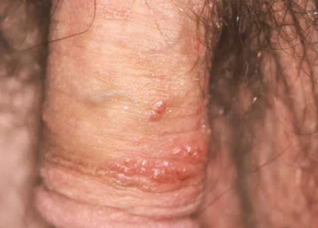 cara mengobati herpes menahun