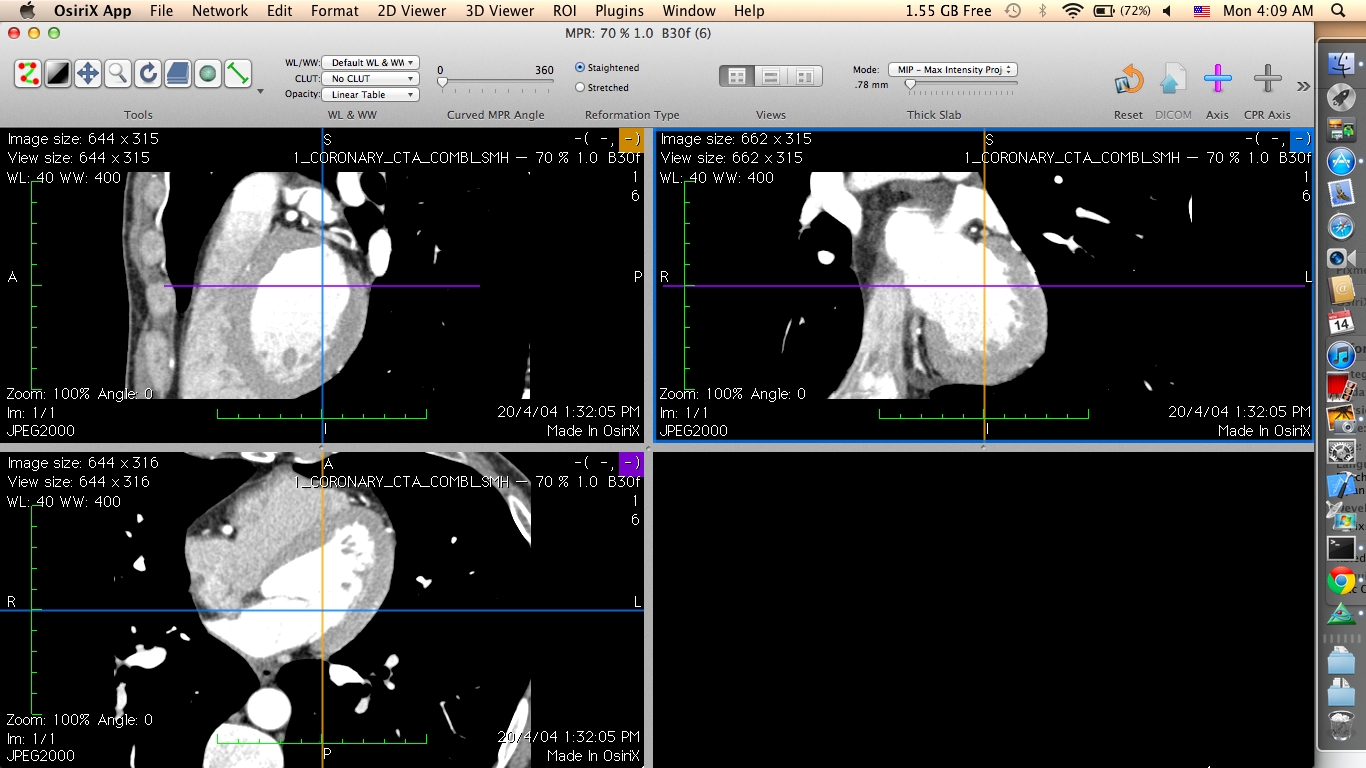 Mac Beginner: Viewing DICOM images in Mac - OsiriX