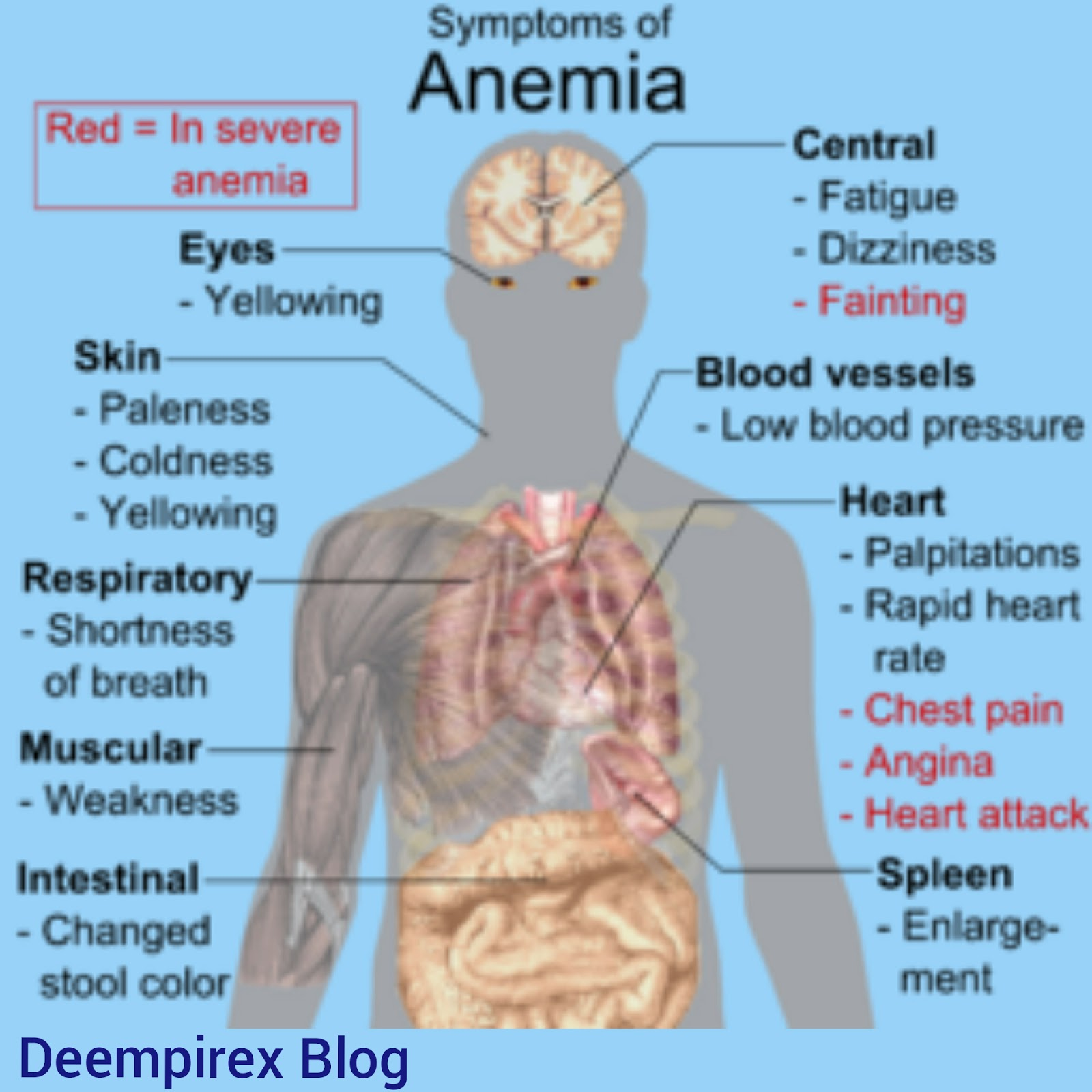 Signs And Symptoms Of Anaemia Welcome To The Empire